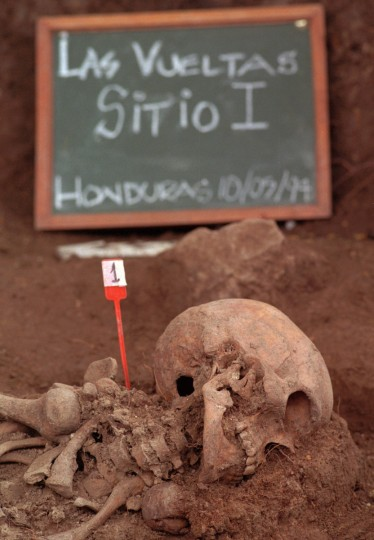 1994: A marker placed by forensics expert near the first of five sets of skeletons exhumed at a mass grave site in Las Veulias, Honduras. This is the first ever dig in Honduras to try to exhume and identify remains of the disappeared from the 1980s. (Kenneth K. Lam/Baltimore Sun)