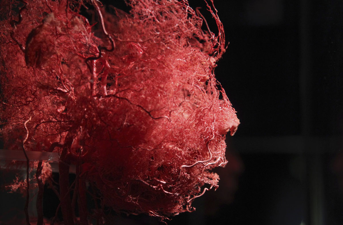 "June 15, 2012: Plastinated blood vessels of an human face are seen during a media viewing for the exhibition ""The Human Body"" in Ostend. The exhibition which runs from June 16 to September 9 showcases dissected real human body specimens that are preserved through an innovative process and respectfully presented, giving visitors the opportunity to view the beauty and complexity of their own organs and systems. (Francois Lenoir/Reuters)"