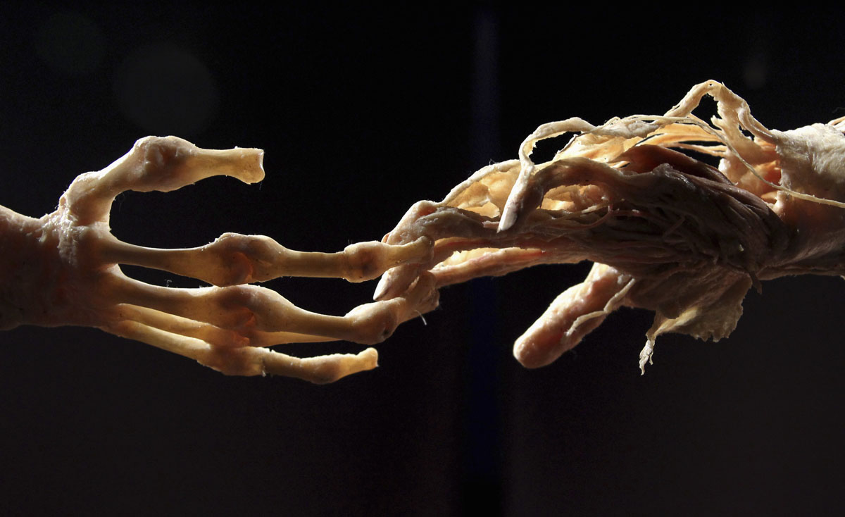 "June 15, 2012: Plastinated human hands are seen during a media viewing for the exhibition ""The Human Body"" in Ostend. The exhibition which runs from June 16 to September 9 showcases dissected real human body specimens that are preserved through an innovative process and respectfully presented, giving visitors the opportunity to view the beauty and complexity of their own organs and systems.(Francois Lenoir/Reuters)"