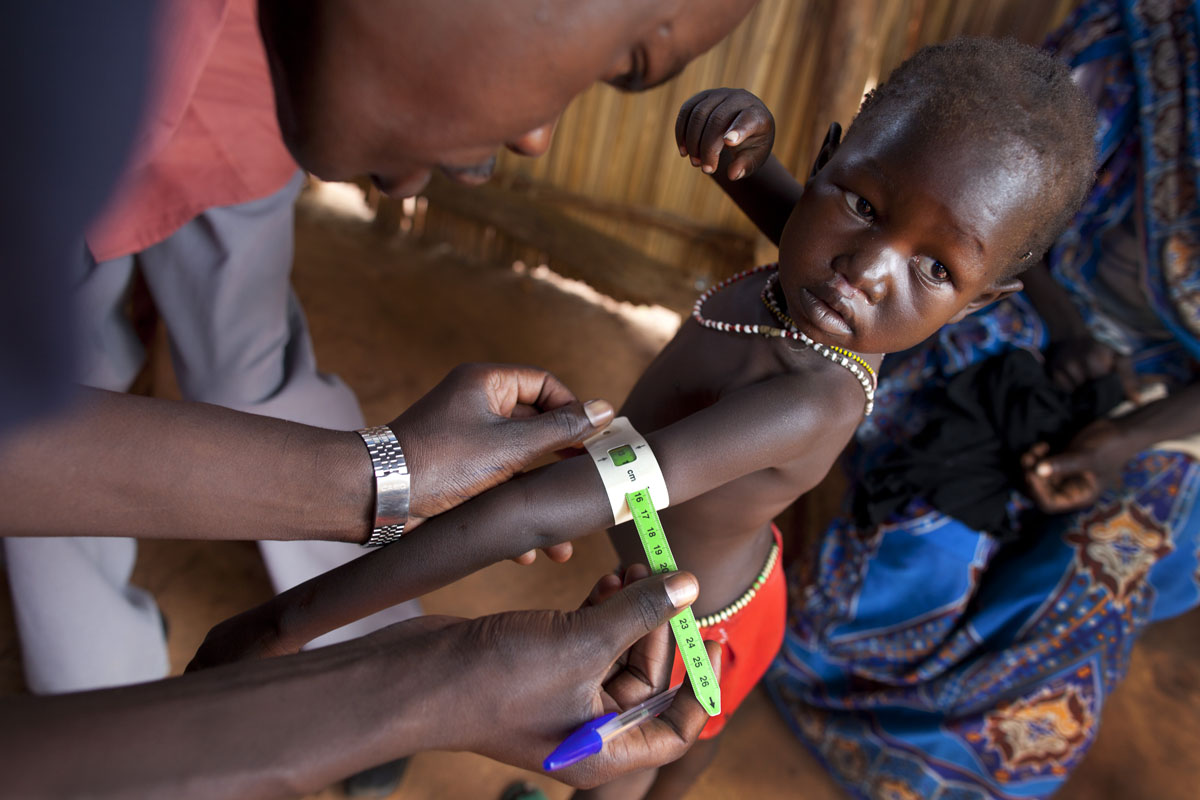 JULY 4: A girl's arm is measured at a field hospital for malnourished children at the Yida refugee camp along the border with North Sudan July 4, 2012 in Yida, South Sudan. Yida refugee camp grows each day and now has swollen to 64,317, as the refugees continue to flee from South Kordofan in North Sudan. The numbers of refugees arriving from North Sudan vary from 500 to 1,000 a day. Many new arrivals walked from 3 to 5 days to reach the camp without food. The rainy season has increased the numbers suffering from diarrhea and severe malnutrition as the field hospitals have 95% of their patients are children under the age of five. (Paula Bronstein/Getty Images)