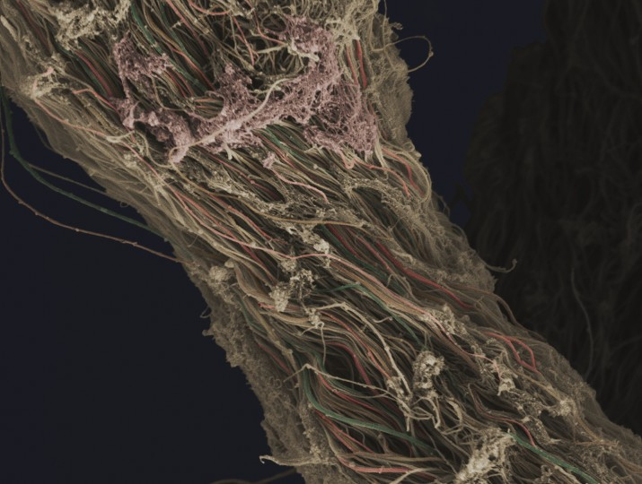This false-coloured scanning electron micrograph (SEM) shows connective tissue removed from a human knee during arthroscopic surgery. Individual fibres of collagen can be distinguished and have been highlighted by the creator using a variety of colours. (Anne Weston, LRI, CRUK/Wellcome Images)