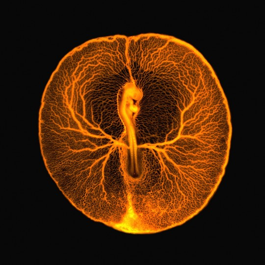 This fluorescence micrograph shows the vascular system of a developing chicken embryo (Gallus gallus), two days after fertilisation. Injecting fluorescent dextran revealed the entire vasculature used by the embryo to feed itself from the rich underlying yolk inside the egg. The image shows the central chicken embryo surrounded by veins and arteries. The head of the embryo, including the embryonic eye and brain, can be seen on the upper part of the embryo, just above the embryonic heart. The long lower part of the embryo is the future body of the chicken, from which legs and wings will develop. At this stage of development, the embryo and its surrounding vasculature are a little smaller than a 5p coin. (Vincent Pasque, University of Cambridge/Wellcome Images)