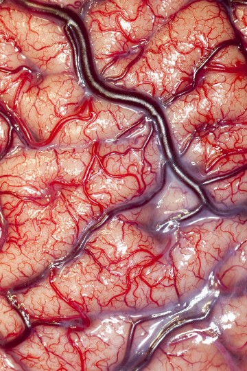 This photograph shows the surface (cortex) of a human brain belonging to an epileptic patient, displaying the arteries and veins that supply its nutrients and oxygen. This photograph was taken before an intracranial electrode recording procedure, in which a flexible electrode grid is attached to the surface of the brain. The patient is then taken to the telemetry ward, where they are observed and recorded for a period of up to two weeks. Post-observation, the surgeon reviews the recordings and evaluates the data using the unique numbers on the grid implant to identify the specific areas of the brain that need to be removed during the next operation. This patient made a full recovery and no longer suffers from epileptic fits. (Photo by Robert Ludlow, UCL Institute of Neurology, London/Wellcome Images)