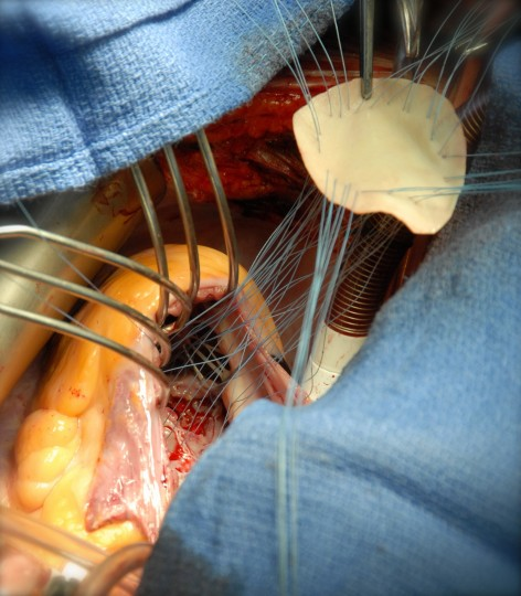This photograph shows the surgical repair of a traumatic ventricular septal defect (VSD). A VSD is a hole between the right and left ventricles of the heart and is usually seen as a congenital condition, known as a 'hole in the heart'. A traumatic VSD, as seen in this case, is a rare complication of chest injury. It might manifest immediately after trauma, leading to heart failure and an inability to stabilise a patient, or it might be delayed and detected months later. Traumatic VSDs can be treated in a variety of ways, depending on the effect they have on the patient. Treatment options range from monitoring and a conservative approach to open surgery, as is depicted here. In this image, the VSD is seen at the bottom, and a bovine patch is being parachuted and stitched into place to seal the defect. (Photo by Henry De'Ath, Royal London Hospital/Wellcome Images)