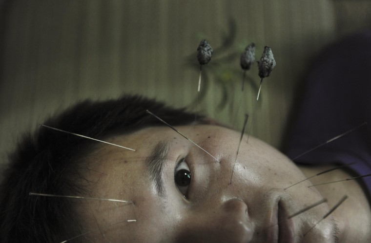 A patient suffering from facial paralysis undergoes acupuncture treatment at a traditional Chinese medical hospital in Jiaxing, Zhejiang province. (Reuters)