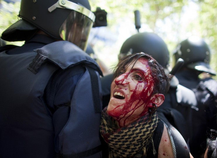 "Blood flows down the face of an injured protester who was injured during clashes between supporters of Spanish coal miners and riot police as they ended a ""Marcha Negra"" (Black March) near the Industry Ministry in Madrid. Thousands of miners and supporters, chanting and throwing firecrackers, marched through the centre of Madrid on Wednesday in protest against government austerity measures, but Prime Minister Mariano Rajoy announced more pain in a new series of taxes and spending cuts. Joined by trade unionists in the capital, the miners rallied noisily at the climax of a 44-day protest against a 60 percent cut in coal subsidies which they say will force mines to close and put many out of work. (Paul Hanna/Reuters)"