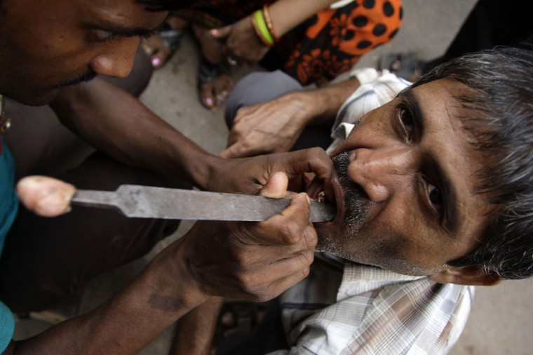 An Indian roadside dentist's assistant files the dentures of a customer at a roadside clinic in Varanasi. Dentist Ramjee Sao said he provides a range of dental services from extractions, filling cavities and routine pain alleviation procedures to making and fitting a complete set of dentures. (STRDEL/AFP/Getty Images)