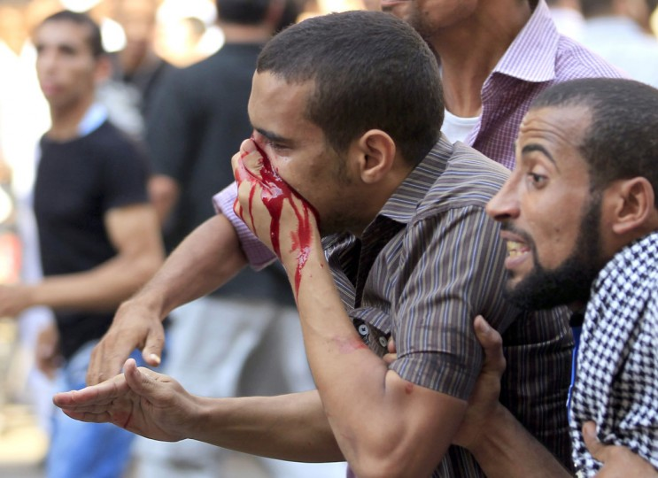 A demonstrator covers a bloody nose during clashes between members of the Muslim Brotherhood and supporters of Egyptian President Mohamed Mursi, and anti-Muslim Brotherhood demonstrators at Tahrir Square, the focal point of the Egyptian uprising, in Cairo. (Mohamed Abd El Ghany/Reuters)