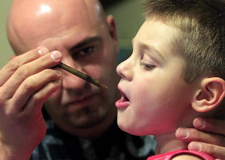July 20, 2012: Jason David administers oral drops of a medical marijuana tincture that he says has greatly helped control the symptoms of his son Jayden's severe epilepsy in Modesto, California. (Luis Sinco/Los Angeles Times/MCT)