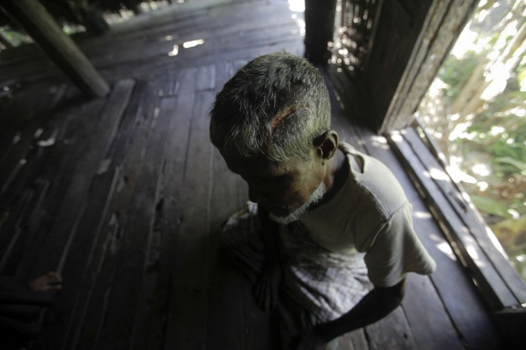 Muhammad Amin, 62, a Muslim man who was beaten with a metal pipe until his skull cracked, sits in his home in Paik Thay, the site of recent violence between Muslim Rohingyas and Buddhist Rakhine people. Picture taken November 2. (Soe Zeya Tun/Reuters)