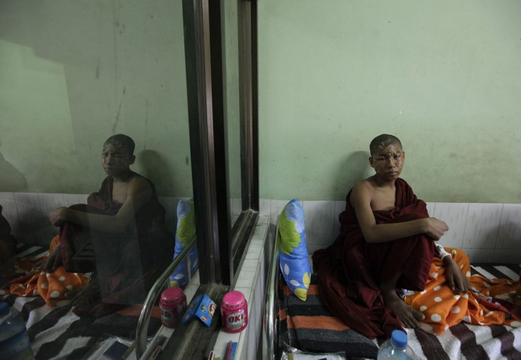 A Buddhist monk, who was injured during a protest against a copper mining project, sits in a hospital in Monywa, Myanmar. Activists said at least 50 people had been injured and 23 were in hospital, some suffering burns after incendiary devices were hurled into their camps by police. (Soe Zeya Tun/Reuters)