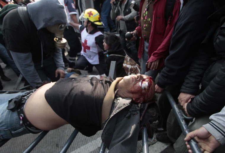 A man recieves medical attention after rioters clashed with police officers outside of the Congress building before the inauguration ceremony of incoming Mexican President Enrique Pena Nieto on December 1, 2012, in Mexico City. Pena Nieto was sworn in as president of Mexico on Saturday following protests by leftist lawmakers inside the congress and clashes between demonstrators and police outside. (Pedro Pardo/AFP/Getty Images)