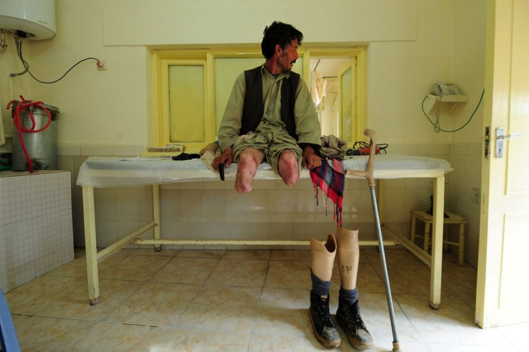 An Afghan amputee waits for the doctor at the International Committee of the Red Cross (ICRC) hospital for war victims and the disabled in Mazar-i Sharif. The ICRC Orthopaedic Project, which began in 1988 in Kabul, now has seven centres in various Afghan provinces. (Qais Usyan/AFP/Getty Images)