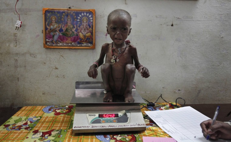 """Severely malnourished two-year-old girl Rajni is weighed by health workers at the Nutritional Rehabilitation Centre of Shivpuri district in the central Indian state of Madhya Pradesh February 1, 2012. India has failed to reduce its high prevalence of child malnutrition despite its economy doubling between 1990 and 2005 to become Asia's third largest. A government-supported survey last month said 42 percent of children under five are underweight - almost double that of sub-Saharan Africa - compared to 43 percent five years ago. The statistic - which means 3,000 children dying daily due to illnesses related to poor diets - forced Prime Minister Manmohan Singh to admit last month that malnutrition was """"a national shame"""" and was putting the health of the nation in jeopardy. (Adnan Abidi/Reuters)"""
