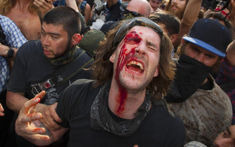 A protester, with blood on his face after a strike to the head with a police baton, screams during an anti-NATO protest march in Chicago May 20, 2012. Baton-swinging police officers clashed with anti-war protesters at the start of the NATO summit on Sunday, beating some and dragging others away. (Andrew Kelly/Reuters)