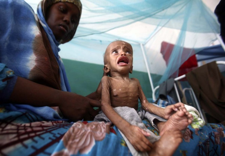 A seven-month-old malnourished child awaits medical tests at the paediatric ward of the Banadir hospital in Somalia's capital Mogadishu December 17, 2012. (Ismail Taxta/Reuters)