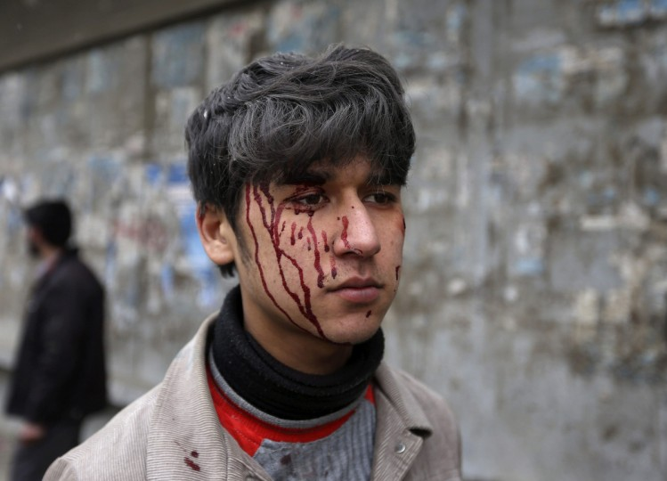 A wounded Afghan boy is seen with blood on his face at the site of a car bomb attack in Kabu. A car bomb exploded in front of the gates of the Afghan intelligence agency on Wednesday, Reuters witnesses said, near heavily barricaded government buildings and Western embassies. (Omar Sobhani/Reuters)