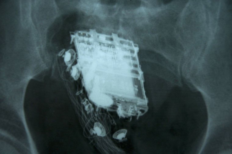 A mobile phone and a hands free kit are seen in the rectum on an X-ray of a 58 year old Sri Lankan prisoner. The prisoner, who tried to hide his mobile phone during a search of his cell, was caught when guards heard ring tones from his rear-end, a hospital official said. The 58-year-old convict had to be admitted to the national hospital in Colombo where doctors later retrieved the handset from his rectum. (STR/AFP/Getty Images)