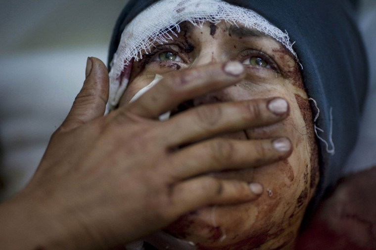 #4: Rodrigo Abd of Argentina, a photographer working for the Associated Press, has won the first prize in the General News Single category of the World Press Photo Contest 2013 with this picture of Aida, crying while recovering from severe injuries she received when her house was shelled by the Syrian Army in Idib, taken on March 10, 2012 and distributed by the World Press Photo Foundation February 15, 2013. (Rodrigo Abd/Associated Press/World Press Photo/Handout/Reuters)