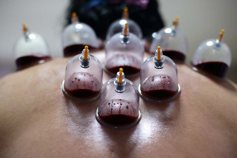 Liquid and congealed blood are seen inside the cups during a blood cupping session on March 18, 2013 in Singapore. Cupping therapy dates back to ancient Chinese, Egyptian and Middle Eastern cultures and is used to treat a variety of medical conditions ranging from skin problems, blood disorders, fertility disorders and stroke. The process involves pricking the skin with needles before immediately applying a cup on top to draw congealed blood. Although the treatment is used widely throughout Asia and the Middle East, western medical groups remain sceptical of the health claims made by supporters and practitioners of the therapy. (Suhaimi Abdullah/Getty Images)