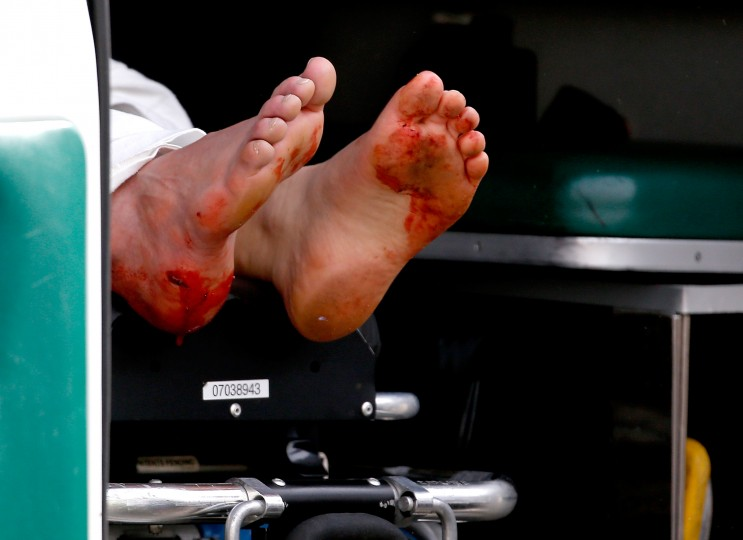 Two blood stained feet of a man hangs outside an ambulance outside a medical tent located near the finish of the 117th Boston Marathon after two bombs exploded on the marathon route on April 15, 2013 in Boston, Massachusetts. Two people are confirmed dead and at least 23 injured after two explosions went off near the finish line to the marathon. (Jim Rogash/Getty Images)