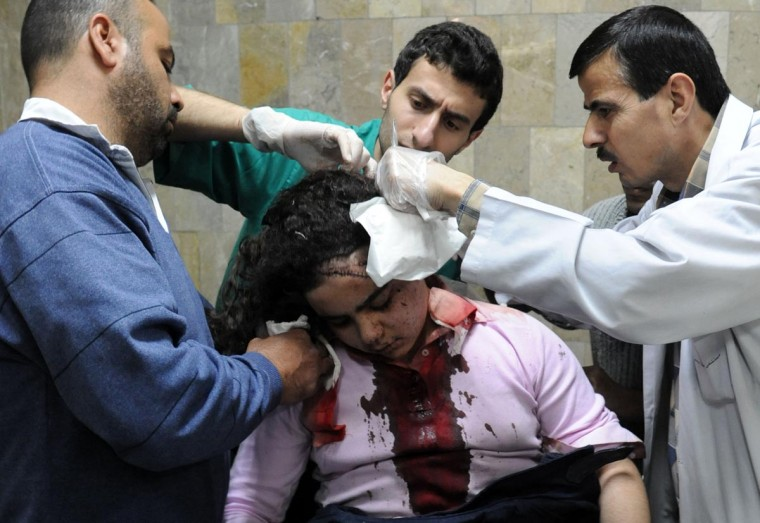 A handout picture released by the Syrian Arab News Agency (SANA) shows a girl being treated in hospital following a car bomb explosion in the capital, Damascus, on April 8, 2013. A massive suicide car bomb ripped through a central Damascus street, killing at least 15 people and injuring 53 others, Syrian state media reported. (SANA HO via AFP/Getty Images)