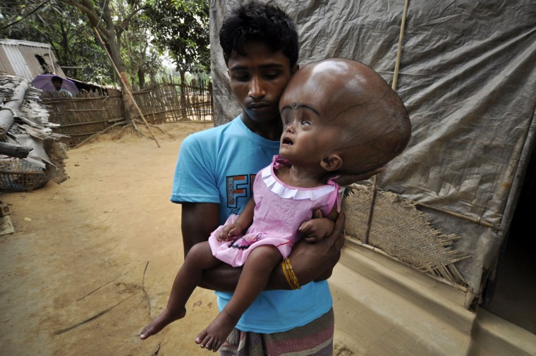 Indian daily labourer, Abdul Rahman, 26, holds his 18 month old daughter, Roona Begum, suffering from Hydrocephalus, a buildup of fluid inside the skull that leads to brain swelling, in front of their home in Jirania village on the outskirts of Agartala, the capital of northeastern state of Tripura. Rahman works in a brick factory earning 150 rupees (2.75 USD) a day and does not have the capability to treat his daughter. India's rural development minister said in November 2012, that the country's public health system had 'collapsed' in a blunt assessment of his government's failure to extend a social safety net for the poor. (Arindam Dey/AFP/Getty Images)