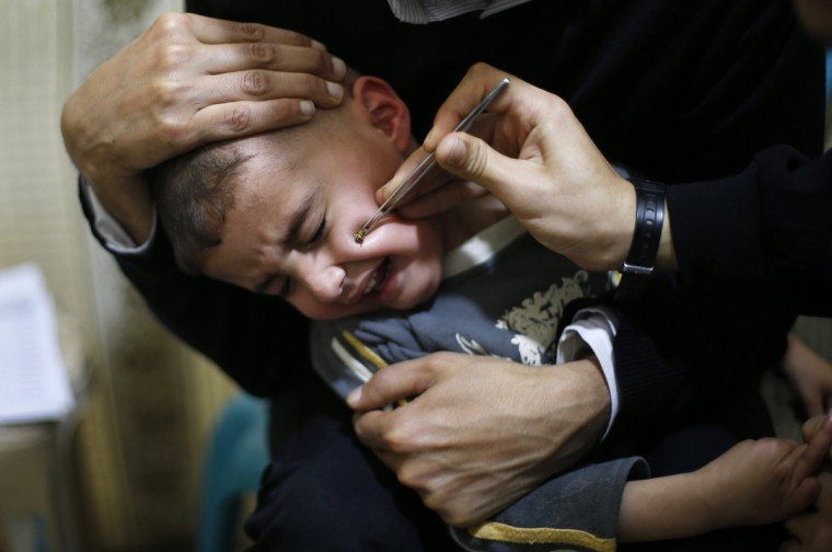 A Palestinian boy suffering from Paranasal sinus cries as he receives treatment at a bee venom therapy center in Gaza City. The treatment, using the venom of honeybees, is known to be effective for diseases like epilepsy, spinal disorders, hearing problems and nasal allergy, according to Ratib Samoor, an agricultural engineer and owner of the center. The center, which was founded in 2003, treats dozens of Palestinians on a daily basis. (Suahib Salem/Reuters)