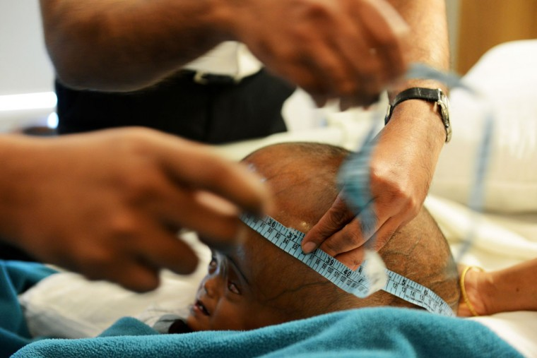 In this photograph taken on April 17, 2013, Indian doctors measure the circumference of Roona Begum's head during the initial testing of her condition, a day after Roona and her parents were flown into New Delhi from their remote village in the northeastern part of India. Roona Begum suffers from hydrocephalus, a rare disorder that caused her head to swell to nearly double its size. (Roberto Schmidt/AFP/Getty Images)