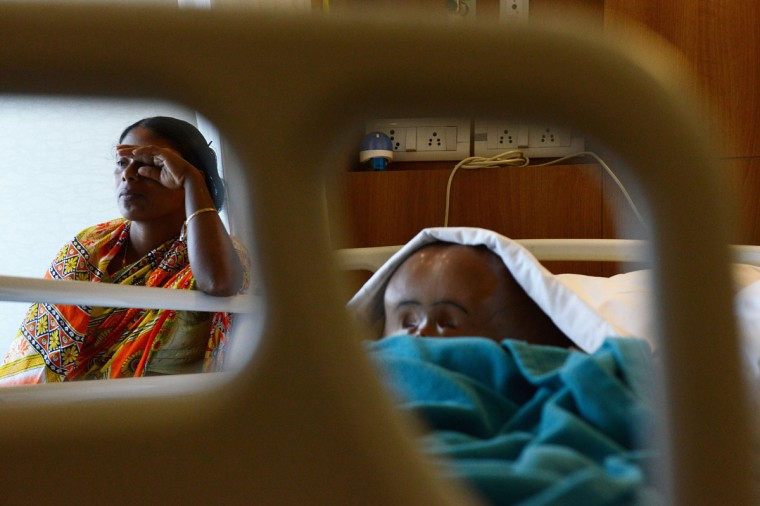 In this photograph taken on April 18, 2013, the mother of Indian child Roona Begum (right), Fatima Khatun, wipes her eyes in fatigue as she sits next to her daughter's hospital bed, two days after Roona and her parents were flown into New Delhi from their remote village in the northeastern part of India. (Roberto Schmidt//AFP/Getty Images)