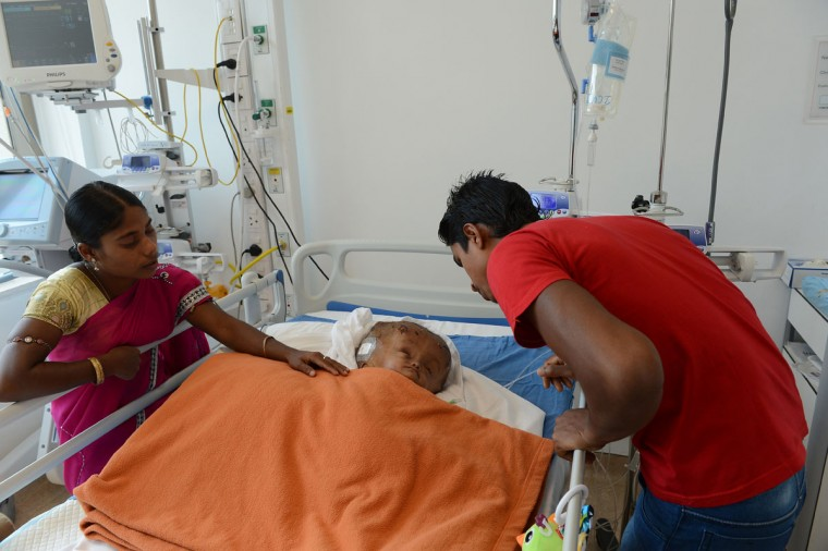 """Fatima Khatun (left) and Abdul Rahman, the parents of Indian child Roona Begum, a 15-month old girl suffering from hydrocephalus, greet her after surgery at a hospital in Gurgaon on the outskirts of New Delhi on May 15, 2013. Doctors successfully carried out life-saving surgery on Roona, her neurosurgeon told AFP. """"The surgery went perfectly, much better than expected,"""" Sandeep Vaishya said after the procedure, speaking exclusively to an AFP reporter inside the operating theater. (Sajjad Hussain/AFP/Getty Images)"""