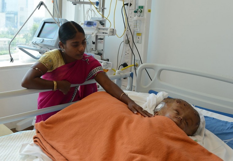 "Fatima Khatun (left), the mother of Indian child Roona Begum, a 15-month old girl suffering from hydrocephalus, greets her after surgery at a hospital in Gurgaon on the outskirts of New Delhi on May 15, 2013. Doctors successfully carried out life-saving surgery on Roona, her neurosurgeon told AFP. ""The surgery went perfectly, much better than expected,"" Sandeep Vaishya said after the procedure, speaking exclusively to an AFP reporter inside the operating theater. (Sajjad Hussain/AFP/Getty Images)"