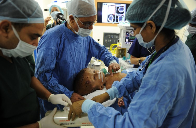 """Indian doctors prepare Roona Begum, a 15-month old girl suffering from hydrocephalus (a buildup of fluid inside the skull that leads to swelling) for surgery at a hospital in Gurgaon on the outskirts of New Delhi. Doctors successfully carried out life-saving surgery on Roona, her neurosurgeon told AFP. """"The surgery went perfectly, much better than expected,"""" Sandeep Vaishya said after the procedure, speaking exclusively to an AFP reporter inside the operating theater. (Sajjad Hussain/AFP/Getty Images)"""