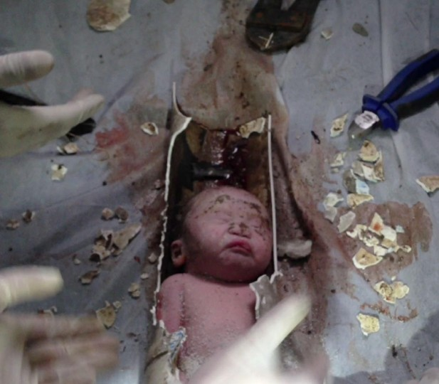 This frame grab taken from AFPTV footage received on May 28, 2013 shows rescue workers breaking away bits of a pipe to remove a newborn baby boy stuck inside in the city of Jinhua, in the eastern province of Zhejiang. The newborn baby boy was rescued from a sewage pipe in a Chinese apartment building after being flushed down a toilet, state media said, provoking online outrage on May 28. (AFPTV/AFP/Getty Images)