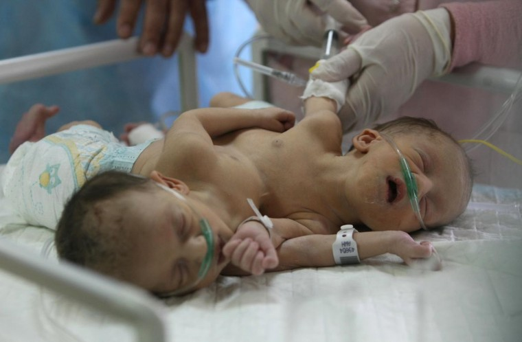 Three-day-old Iman and Amani Palestinian Siamese twin girls from the Breiwesh family lie on a bed in the newborns unit at the Alia Hospital in the West Bank city of Hebron on June 03, 2013. Their mother received permission from the Israeli government to deliver at Jerusalem's Hadassah Hospital, but the girls were born with one stomach and two hearts connected in one organ, according to Israeli doctors. The woman was warned by Palestinian doctors during prenatal checkups that she had Siamese twins but she refused to terminate her pregnancy because of her religious beliefs. (Hazem Bader/AFP/Getty Images)