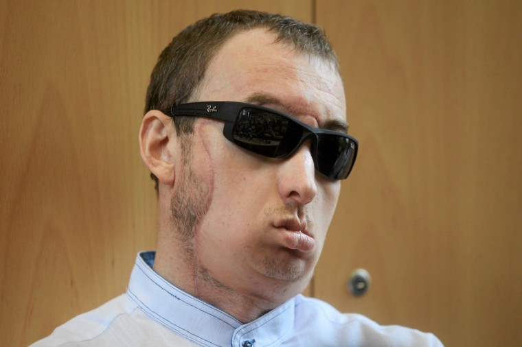A face transplant patient only identified as Grzegorz, 33, attends a media conference at a hospital in Gliwice. He is leaving hospital two in a half months after successfully undergoing Poland's first face transplant. The man lost a large part of his face after an accident involving an industrial stone cutter. (Dawid Chalimoniuk/Reuters)