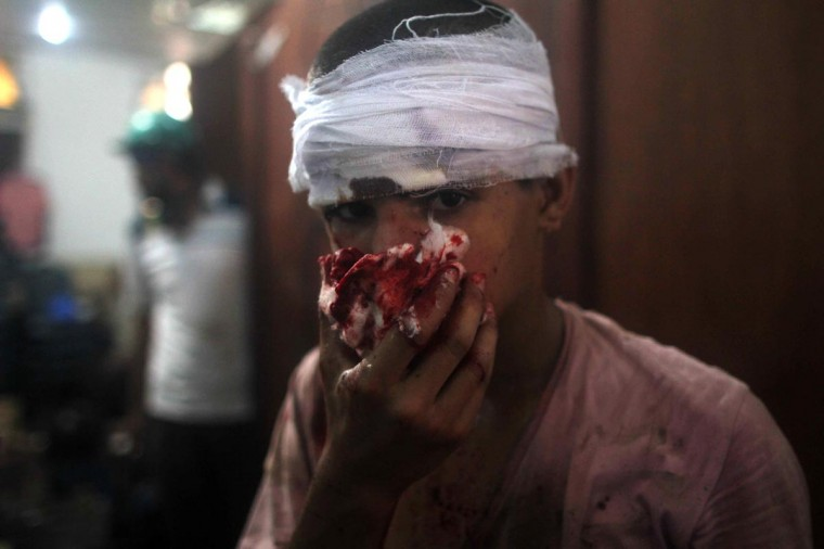 An injured Egyptian youth is seen at a makeshift hospital during clashes between supporters of Egypt's ousted president Mohamed Morsi and police in Cairo on August 14, 2013. (Mossab El-Shamy/AFP/Getty Images)