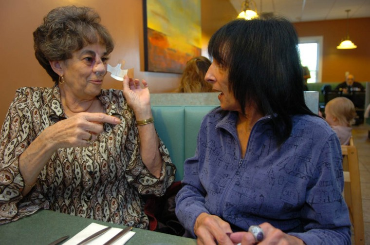 Linda Hershey, 63, shows the changes to her nose to her friend Terry during brunch at the Olde Hickory Grill & Restaurant in Lancaster, Pa. (Algerina Perna/Baltimore Sun/Nov. 1, 2008)