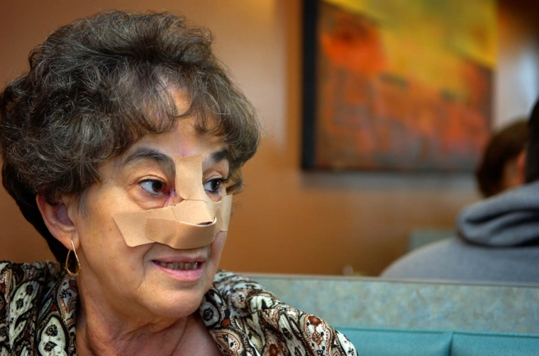 Linda Hershey wears bandages to conceal the globular graft in the middle of her face. She's having brunch at a restaurant in Lancaster, Pa. (Algerina Perna/Baltimore Sun/Nov. 1, 2008)