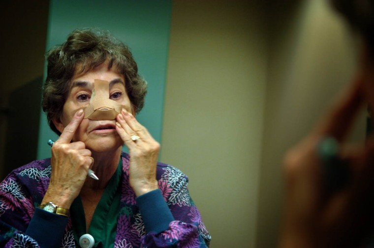"Linda Hershey, RN, secures her nasal dressing at Lancaster Regional Medical Center where she works ""per diem"" as an operating room nurse. She has continued to work in between the surgeries, taking time off only when she was too ill to work. (Algerina Perna/Baltimore Sun/Nov. 12, 2008)"