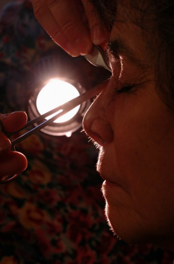 Stitches are removed from Linda Hershey's nose after a recent surgery. (Algerina Perna/Baltimore Sun/Nov. 13, 2008)