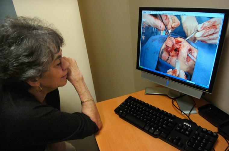 While on a surgical follow-up visit in November 2008 with Dr. Patrick Byrne, Linda Hershey, 64, looks at pictures from her nose removal surgery in December, 2007. (Algerina Perna/Baltimore Sun)