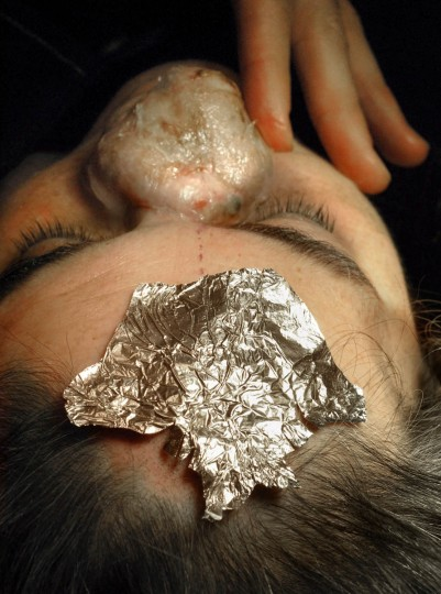 The aluminum foil on Linda Hershey's forehead is made in the shape of a nose mold that was made from her daughter's nose. The shape of the foil will be cut into her forehead skin which will be grafted onto her nose to make the outer skin covering for the nose. (Algerina Perna/Baltimore Sun/May 21, 2008)