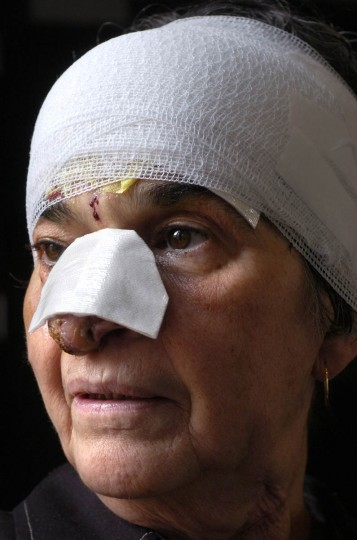 "Linda Hershey head was wrapped in gauze after a medical procedure on her forehead. ""I looked like a train wreck."" (Algerina Perna/Baltimore Sun/May 21, 2008)"