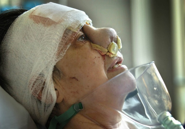 "Amid many challenging days of physical suffering and psychological adjustment, Linda Hershey slipped into depression. For a brief period, Linda took Zoloft, but discontinued when it didn't seem to offer relief. She is pictured after a ""minor"" nose surgery to make the thick outer skin of the nose thinner. (Algerina Perna/Baltimore Sun/July 15, 2008)"