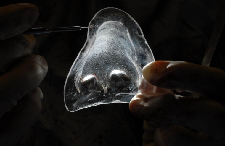 "The translucent nature of the nose mold allows Dr. Patrick Byrne to see the ""developing framework"" of the new nose he's constructing for Linda Hershey. (Algerina Perna/Baltimore Sun/June 17, 2008)"