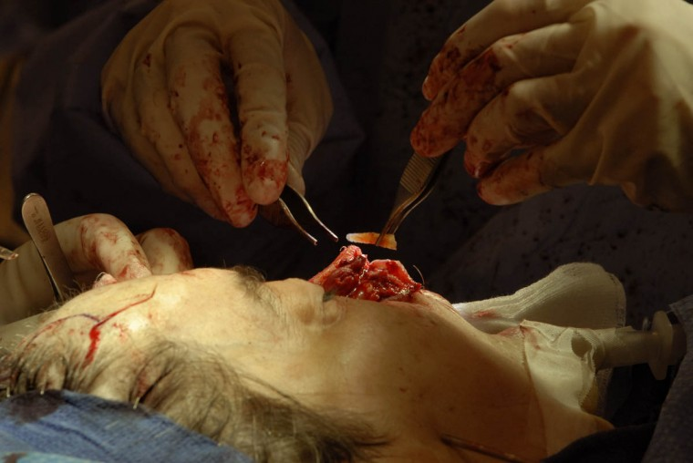 Rib cartilage from Linda Hershey's chest is placed inside her nose by Dr. Patrick Byrne. (Algerina Perna/Baltimore Sun/June 17, 2008)
