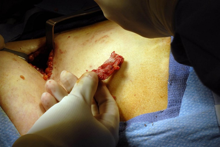 Rib cartilage is extracted from Linda Hershey's chest to be used as a support structure in her new nose. (Algerina Perna/Baltimore Sun/June 17, 2008)