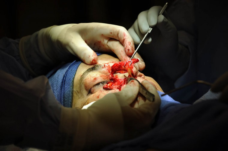A piece of donor rib cartilage is secured inside Linda Hershey's nose. (Algerina Perna/Baltimore Sun/Sept. 28, 2010)