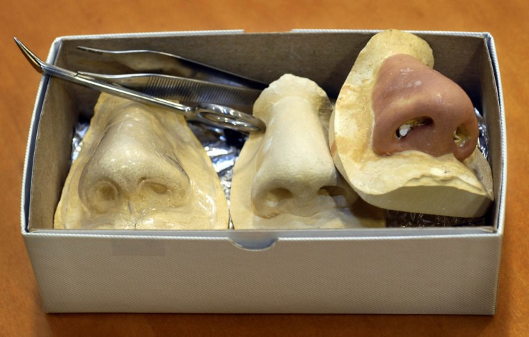 These nose molds were made from Tami Layman's nose to be used as guidelines in forming her mother, Linda Hershey's new nose. (Algerina Perna/Baltimore Sun/June 16, 2008)